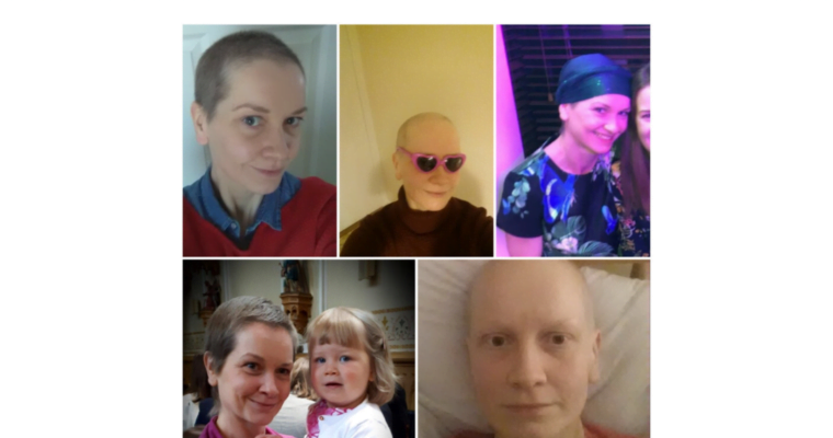 Guest blog: When Natasha lost her hair